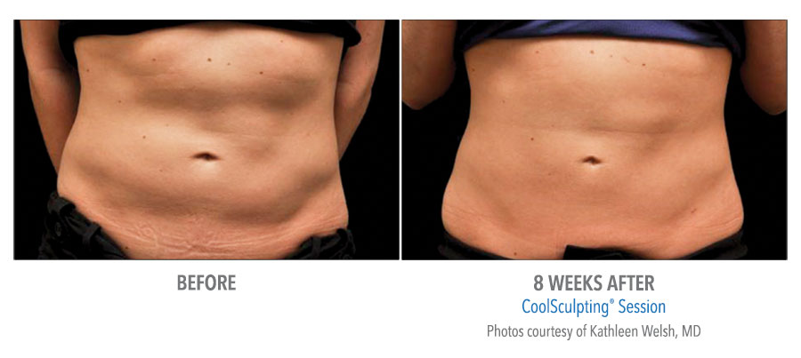 Coolsculpting Aesthetic Skin Solutions